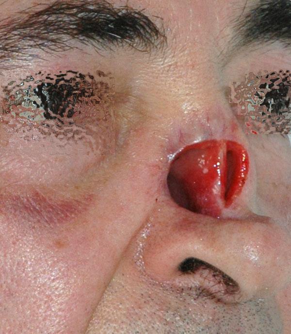 giacomo colletti chirurgia maxillo facciale milanoForInterno Del Naso