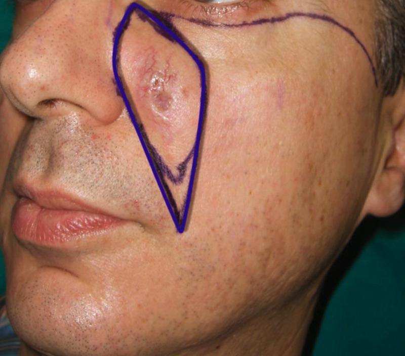Le maschere di Agafya per la persona su latte di alce